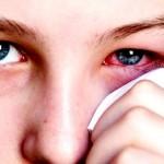 Trị bệnh đau mắt đỏ từ bài thuốc dân gian