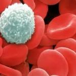 Chữa bệnh ung thư máu từ dừa dâu, bạn không nên bỏ qua