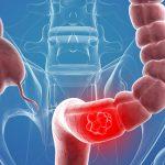 Thay đổi lối sống phòng chống ung thư đại tràng