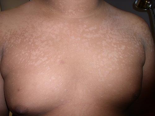 5 loại bệnh nấm da thường gặp khi thời tiết ẩm ướt