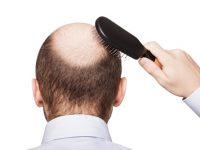 Bệnh hói đầu và những thông tin mà bạn nên biết