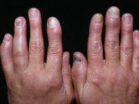 Cảnh báo về viêm khớp ngón tay và cách điều trị hiệu quả