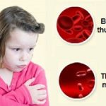 Nguyên nhân, triệu chứng và cách điều trị bệnh thiếu máu