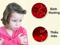 Nguyên nhân, triệu chứng và cách điều trị thiếu máu