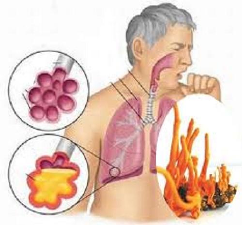 Đông trùng hạ thảo chữa các bệnh về hô hấp