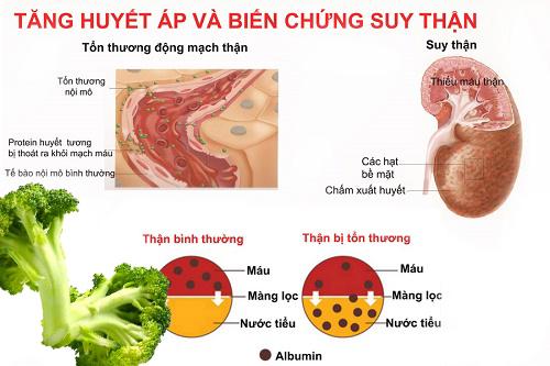 Bông cải xanh tốt cho huyết áp và thận