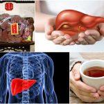 Nấm linh chi và các công dụng về bệnh lý gan