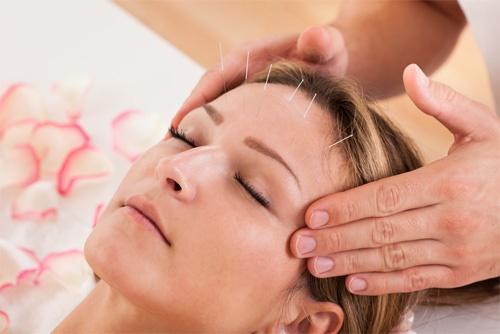 Phương pháp châm cứu bấm huyệt điều trị mất ngủ