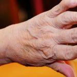 Dấu hiệu của bệnh viêm khớp dạng thấp bạn nên biết