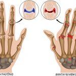 Viêm khớp dạng thấp và các giai đoạn của bệnh