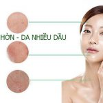 Kem giữ ẩm trị nhờn hiệu quả Ducray keracnyl matifier 30ml | Ducray