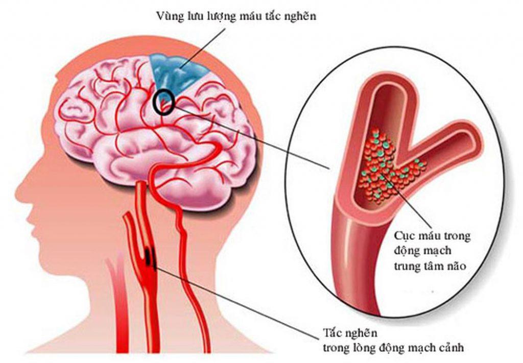 Thiểu năng tuần hoàn não do cục máu đông gây suy giảm trí nhớ