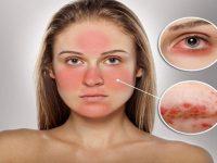Cách chữa dị ứng da tại nhà cực hiệu quả
