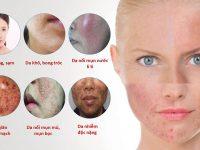 Cách dấu hiệu nhận biết da nhiễm Corticoid tại nhà