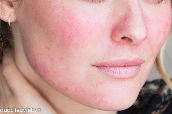 Các biểu hiện dị ứng da mặt